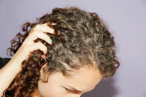 Седеют волосы с правой стороны. Что на самом деле происходит, когда волосы начинают седеть? (7 фото)