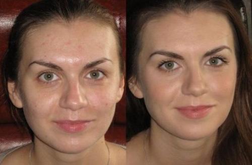 каким тональным кремом лучше пользоваться если жирная кожа