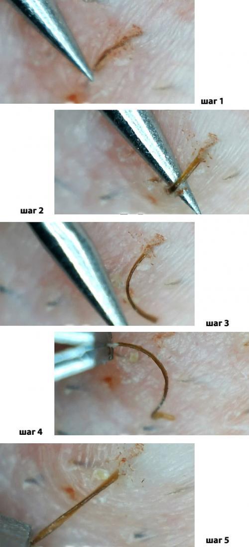 Вросшие волосы в зоне бикини лечение в домашних условиях. Меры борьбы