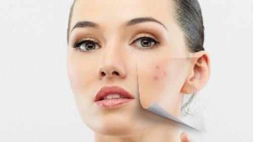Уход за жирной кожей с угревой сыпью. Можно выделить пять основных правил ухода за кожей с угревой сыпью.