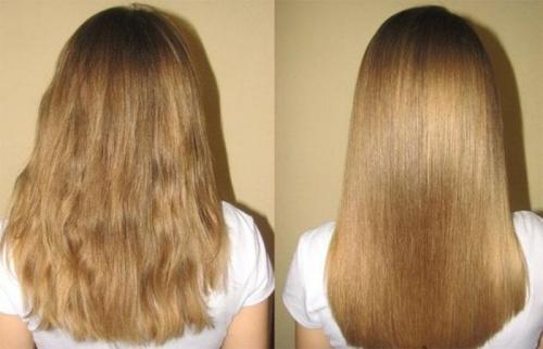 Ампулы для волос диксон. Обзор лечебных ампул от алопеции Dikson Polipant (Полипант) и отзывы о них
