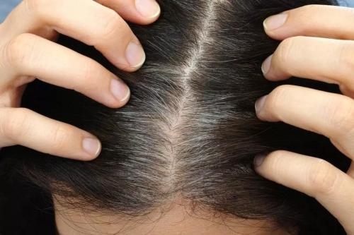 Из за чего седеют волосы в раннем возрасте. Почему рано начинают седеть волосы на голове