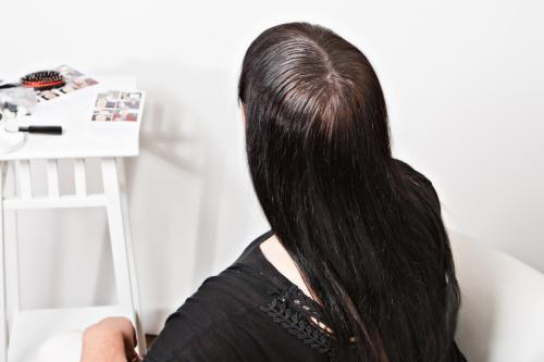 Редкие волосы на макушке у женщин. Облысение на макушке у женщин