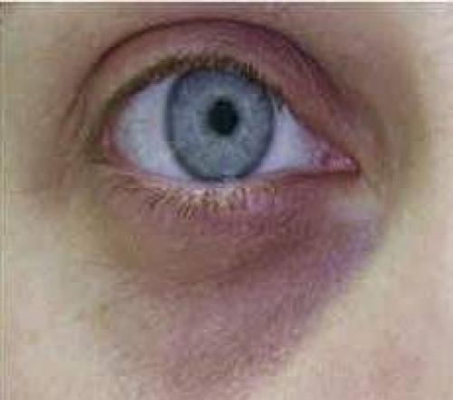 Синяки под глазами лечение. Синяки под глазами, как следствие образа жизни