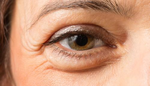 Как убрать мешки под глазами в 55 лет. Причины появления мешков под глазами