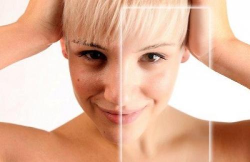 Эффективные отбеливающие маски. Отбеливание кожи дома